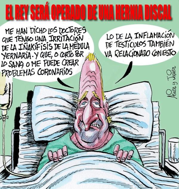 El Rey, Juan Carlos, Hernia, Urdangarin, Noós, Casa Real, Caricatura